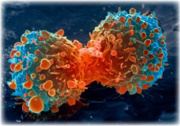 A cancer cell divides.